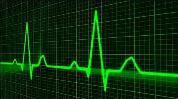 Ketahui-Bagaimana-Kateterisasi-Jantung-Dilakukan