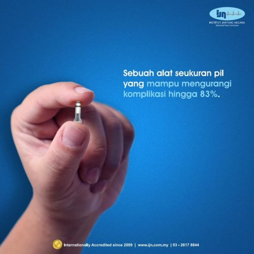 Berobat Jantung ke Rumah Sakit IJN Malaysia Melalui Perwakilan di Lampung | WA +62 812 7736 1440